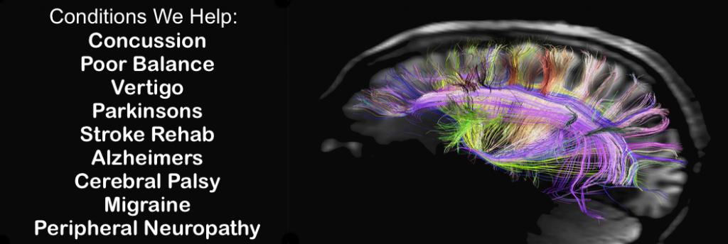 brain-slide-1